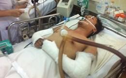 Diễn viên bị tai nạn trong phim của Ưng Hoàng Phúc qua đời