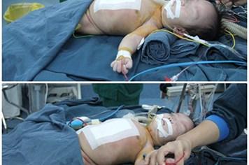 Hai trẻ song sinh 4 tháng tuổi được mổ tách rời nhau