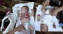 Cần bổ sung chất sắt cho trẻ sinh thiếu tháng