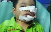 Bé 3 tuổi phải khâu 200 mũi trên mặt vì bị chó Phú Quốc cắn