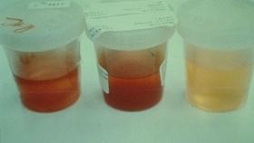 Bệnh viêm cầu thận - những triệu chứng không thể bỏ qua