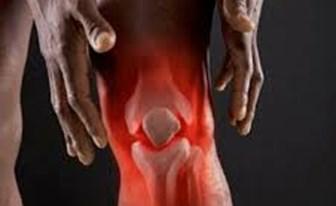 Những phương pháp tự nhiên giúp giảm viêm khớp chỉ trong một tháng