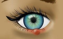 Cảnh báo tình trạng sức khỏe thông qua đôi mắt