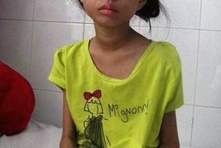 LD15210: Gian nan dành sự sống cho con gái chiến sĩ Trường Sa
