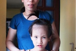 LD15227: Xin giúp mẹ tâm thần, con câm điếc bẩm sinh