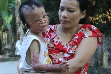 """LD15250: """"Mẹ ơi! khi mô lột mặt nạ ra để con được đến trường với các bạn?"""""""