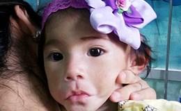 Em bé Sa Pa suy dinh dưỡng nặng đã được xuất viện