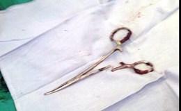 Phẫu thuật lấy chiếc kéo bị bỏ quên trong bụng bệnh nhân suốt 18 năm