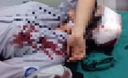 Nữ sinh Hà Nội bị đánh đến gãy tay, rách đầu phải khâu nhiều mũi