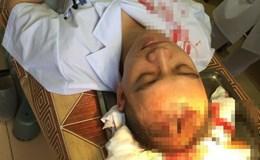 Bộ Y tế yêu cầu điều tra, xử lý nghiêm đối tượng hành hung bác sỹ
