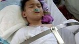 """LD1716: Xót lòng bé trai """"thoi thóp"""" vì bỏng nặng, gia đình không tiền chữa trị"""