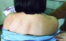 Vụ luật sư bị đánh tại Gia Lai: Công an thụ lý điều tra