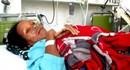 Khánh Hòa: Cứu sống một người bị rắn hổ mang cắn