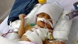 LD 1670: Bé sơ sinh nặng 1,5 kg bị thoát vị hoành cần được giúp đỡ