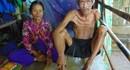 LD1695: Bất hạnh vợ chồng già bị bệnh hiểm nghèo không có tiền để phẫu thuật