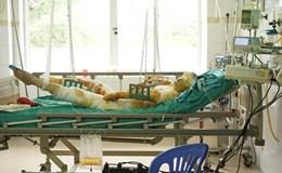 LD1696: Xót xa gia đình có 3 người bị bỏng nặng sau tai nạn giao thông