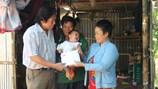 Gần 40 triệu đồng giúp phẫu thuật cho cháu bé 1 tuổi bị bỏng nặng