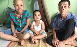 """LD1704: """"Nếu mẹ đi chữa bệnh thì ai kiếm tiền nuôi con?"""""""
