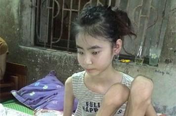LDS15044: Thương thiếu nữ mồ côi, đang xinh đẹp bỗng trở nên tật nguyền