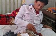 LDS15045: Hãy cứu giúp người thợ sửa xe bị xe lu cán nát xương đùi
