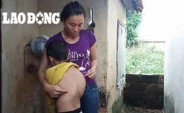 LDS1602: Vợ chồng nghèo mơ ước có 300 triệu đồng chữa bệnh cho con