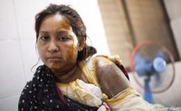 """Những gương mặt bị đánh cắp trong """"cuộc chiến axít"""" ở Bangladesh"""