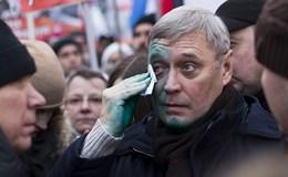 Lãnh đạo đối lập Nga bị tấn công bằng hóa chất