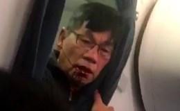 Ông Trump bất bình xem video bác sĩ gốc Việt bị kéo khỏi máy bay