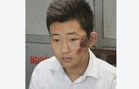 Bảo vệ thẩm mỹ viện Cát Tường trộm iPhone5S của chị Huyền