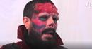 """Cận cảnh người đàn ông phẫu thuật thành Ác quỷ """"Sọ đỏ"""""""