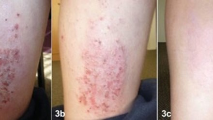 Điều trị viêm da cơ địa mạn tính bằng Dr Michaels Dermatinex thảo dược