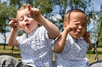 """Hiện tượng """"hiếm"""" triệu người mới có một: 2 anh em sinh đôi khác màu da"""
