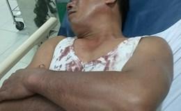 Can ngăn nhóm thanh niên đánh nhau, công an viên bị đánh vỡ đầu