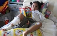 LD1711: Xót xa bé gái 8 tuổi bị cụt tay sau tai nạn giao thông