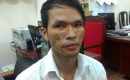 Kẻ hành hạ bé trai Campuchia bị bắt khi đang ở Sài Gòn