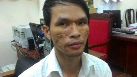 Phát hiện hàng chục clip bạo hành trẻ em trong điện thoại của Nguyễn Thành Dũng