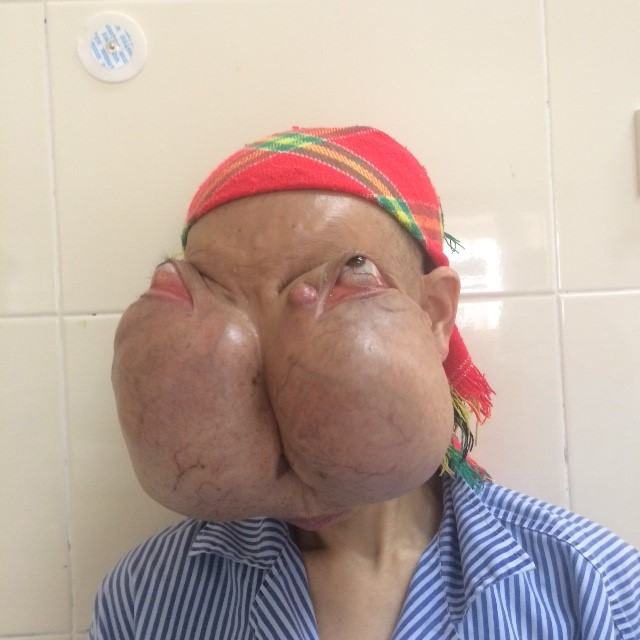 Phẫu thuật thành công cho bệnh nhân có khối u khổng lồ trên mặt