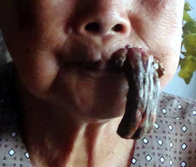 Nỗi khổ của cụ bà 87 tuổi có cái sừng mọc ngay miệng